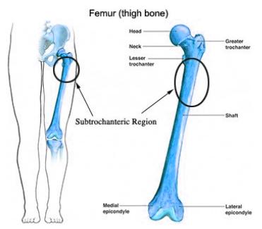 Tulang paha